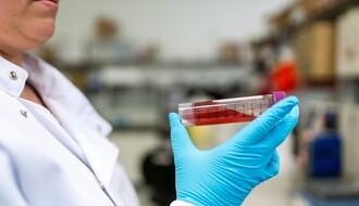 KORONA VIRUS: Preminulo još šestoro obolelih, u Srbiji ukupno 9.205 zaraženih