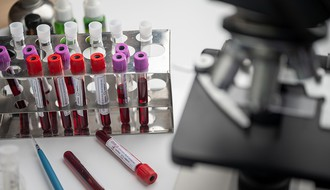 KOVID-19:  Na vakcinama rade i Engleska, Nemačka i Švajcarska