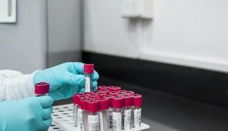 KORONA VIRUS: U Srbiji preminulo još 18 pacijenata, registrovano 1.318 novih slučajeva zaraze