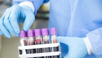KORONA VIRUS: Preminulo još troje obolelih, u Srbiji ukupno 9.848 zaraženih