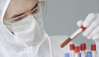 KORONA VIRUS: U Srbiji 62 novoobolelih, preminulo još troje pacijenata