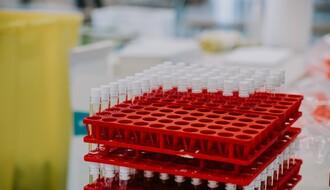 KORONA VIRUS: U Srbiji registrovano više od 3.600 novozaraženih, preminula još 42 pacijenta